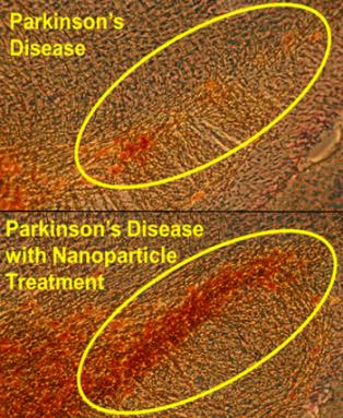 350-inline-2-nanomed-parkinson.png