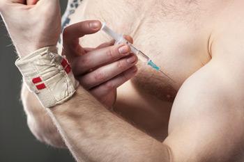 350-inline-5-doping.jpg