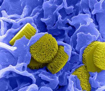 350-inline-5-nanomedicine.png