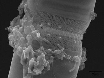 350_Stephanodiscus-Bacteria_2_SEM_Dsouza.png