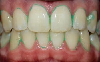 350_green_teeth.png