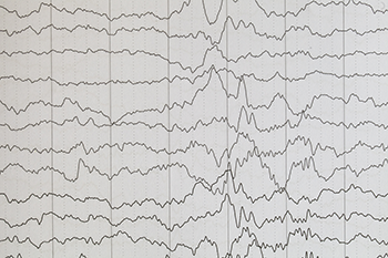 350_inline_ISEF_epilepsy.png