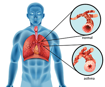 350_inline_asthma_bronchial_tube.png