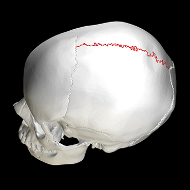 370_ISEF19_Sagittal_suture_skull_-_lateral_view.png