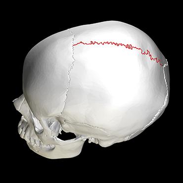 370_ISEF19_Sagittal_suture_skull_-_lateral_view.png