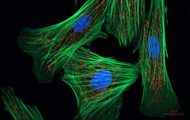 375_fibroblast_cells.png