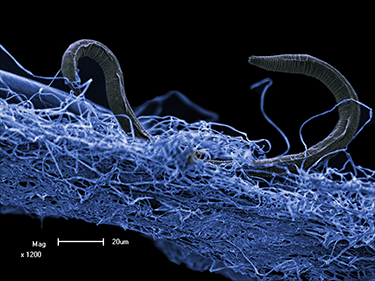 375_inline_roundworms.png