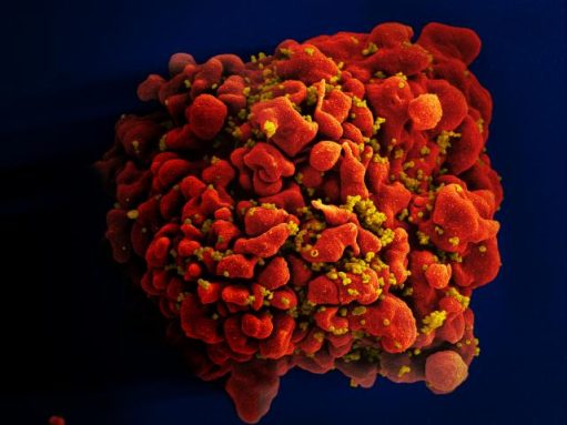 This photo shows HIV infecting a T-cell, which usually fights off infections in the human body. Credit: NIH/NIAID