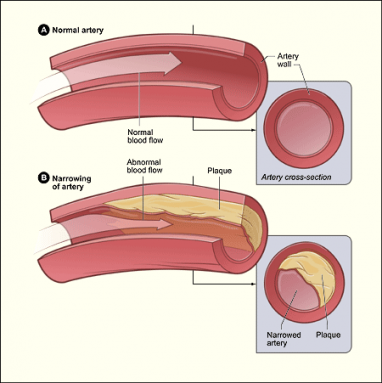 Atherosclerosis diagram
