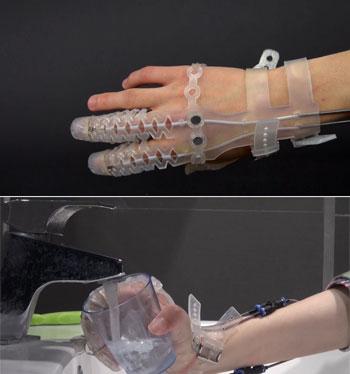 prosthetic fingers glove
