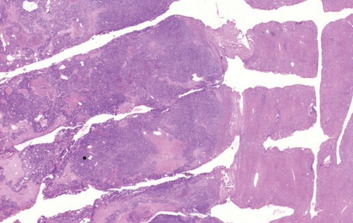 A new electrical device called the iKnife can help surgeons know within seconds if the tissue they're cutting is healthy or cancerous. This image shows liver tissue with cancer that has spread from another organ. The tissue on the left, which appears to be diagonal in this image, is cancerous. The tissue on the right is healthy. Credit: Science Translational Medicine/AAAS