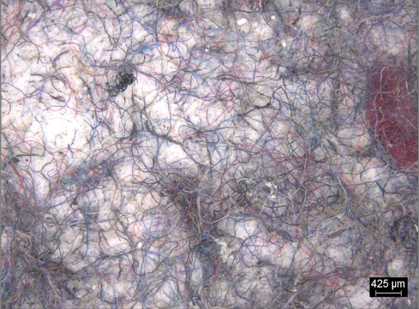 a microscopic image showing clothing microfibers