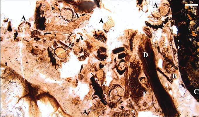 a photo of a slide of stomach contents