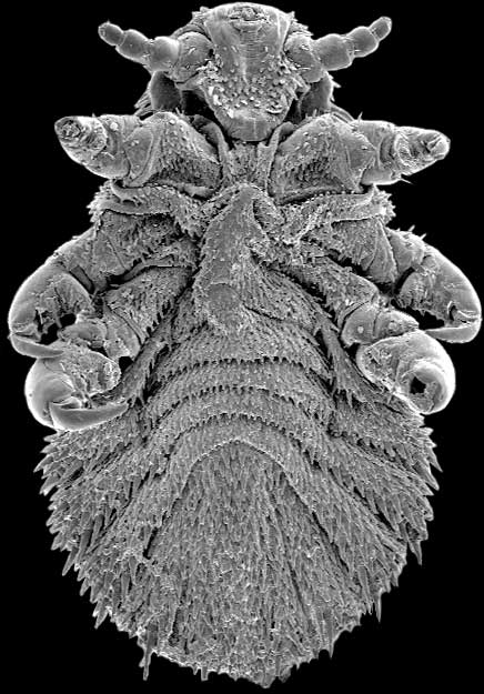 an electron microscope image of a seal louse
