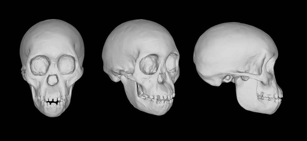three views of a scan of a skull