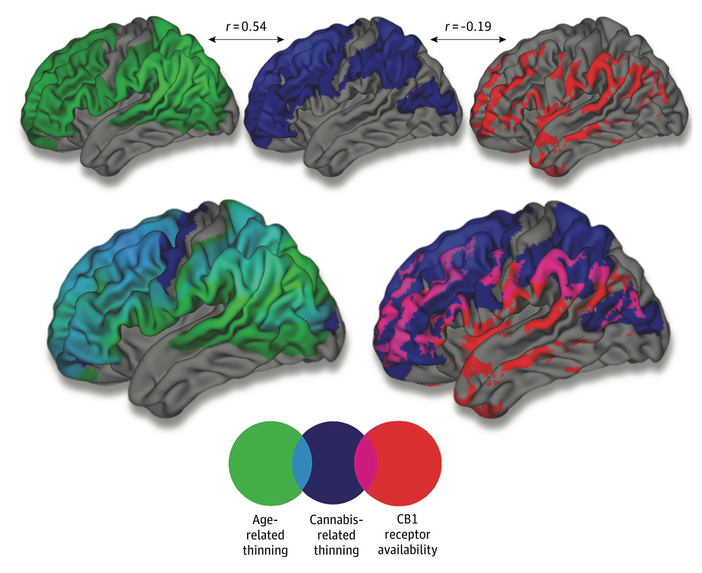 brain maps showing how areas of the brain that thin between 14 and 25 are affected by cannabis